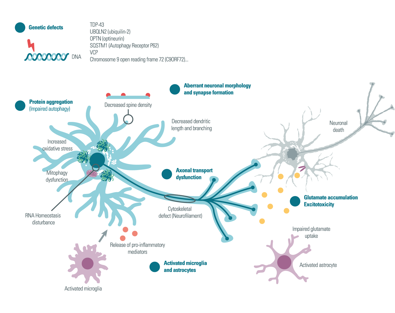 Pathogenesis of Alzheimer's Disease - amyotrophic lateral